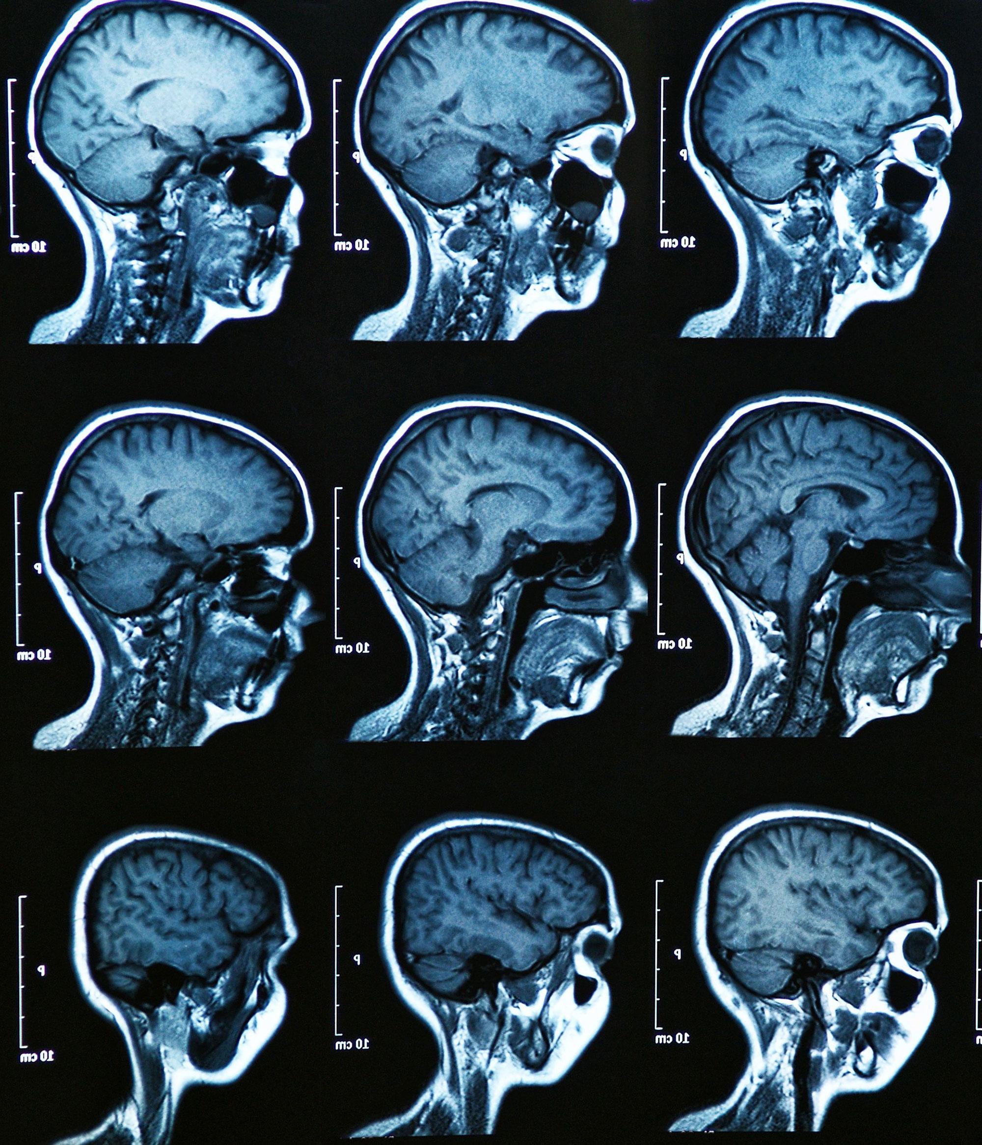 MRI Scan eines menschlichen Gehirns.